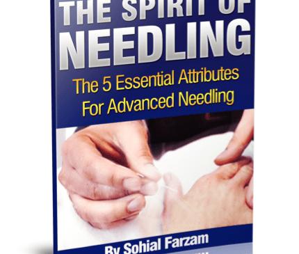 Ebook the spirit of needling needlepro acupuncture needles ebook the spirit of needling fandeluxe PDF