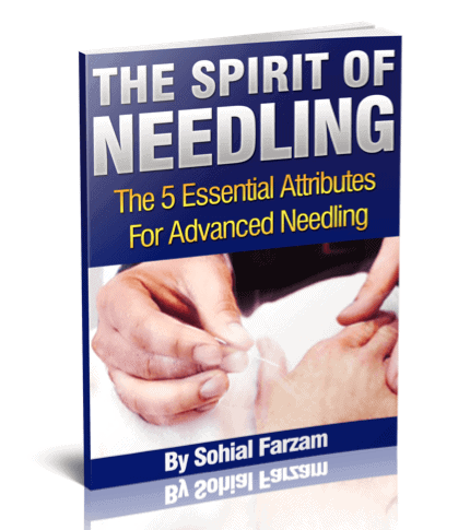 EBook - The Spirit of Needling